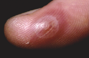 Photo of an orf blister on a human finger; one single red sore.
